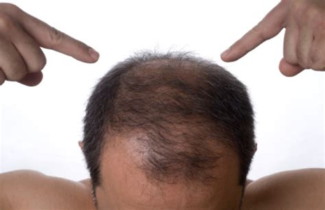Hair Plugs For Men | hair transplant lookingood