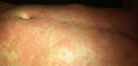 Hives From Detox by Healing Eczema And Cortisone Withdrawal Symptoms Decision