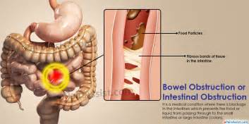 bowel obstruction treatment causes symptoms signs