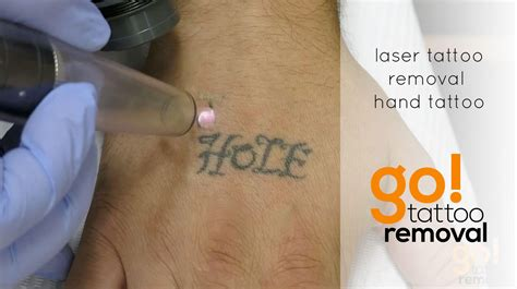 laser tattoo removal on hand go tattoo removal