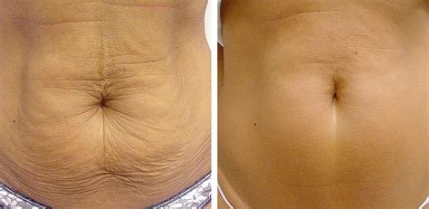 How To Tighten Skin On Stomach After C Section by Thermage Shaping And Skin Tightening For Skin