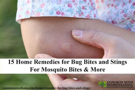 best 20 mosquito bite treatment ideas on