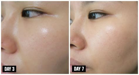 L Oreal White Laser Serum l or 233 al revitalift laser serum review will results really