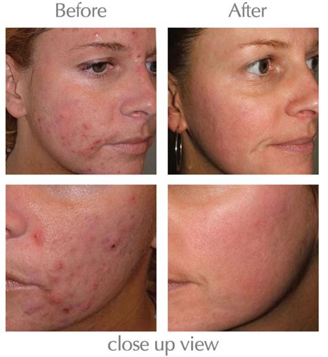 Skincare For The Treatment Of Acne by Our Www Medicalskincentre Au