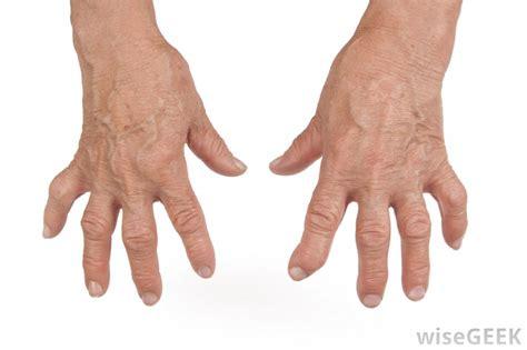 image gallery lupus arthritis