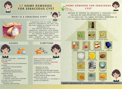 17 home remedies for sebaceous cyst home remedies