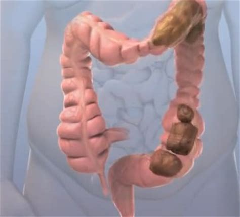 Medicine To Loosen Stool by Incomplete Bowel Movement Causes Treatment