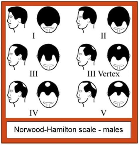 hamilton pattern hair loss the treatment of androgenetic alopecia with lllt devices