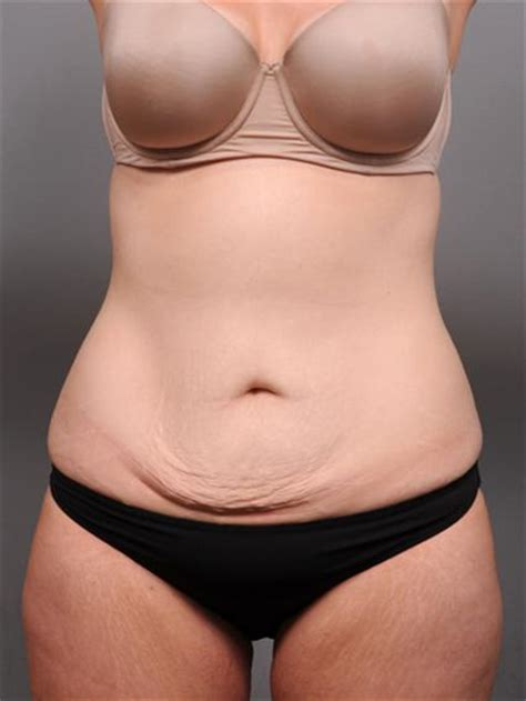 will insurance pay for tummy tuck after c section photo gallery tummy tuck nyc