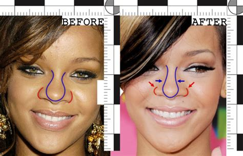Did Get A Nose by Rihannaplasty Did Rihanna A Nose Rawnsley