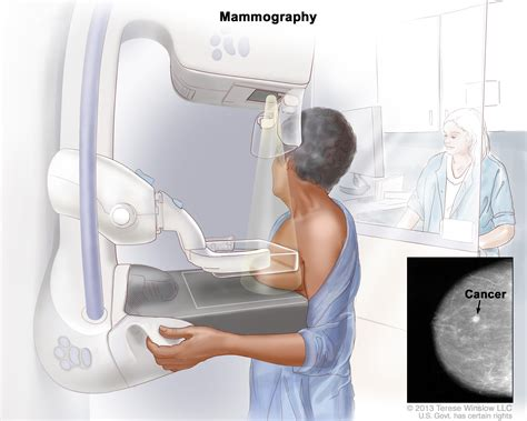 New Mri Testing For Breast Cancer Screening by Breast Cancer Screening Pdq 174 Patient Version National