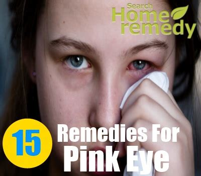 15 home remedies for pink eye treatments cure