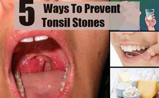 5 best and effective ways for tonsil stones prevention