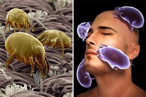 milben in matratze milbenkot drei therapiebausteine gegen die