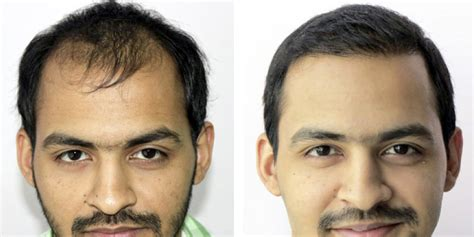 can hot water damage fue hair grafts patient profile 3 800 graft hair transplant session