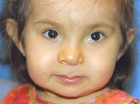 cleft palate cleft lip and palate cleft lip photo gallery before and after cleft lip