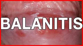 balanitis symptoms causes treatment and prevention