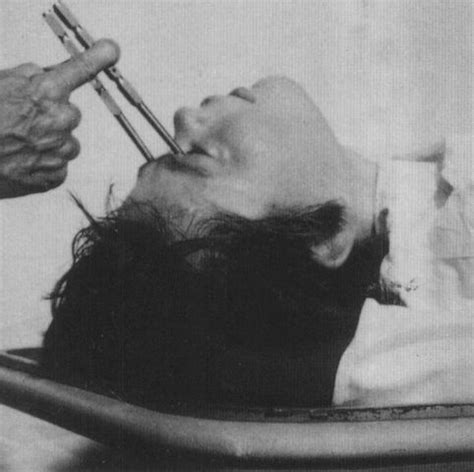 techniques and ills used in the 1930s to produce hairstyles 10 of the most bizarre medical practices and theories