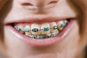 braces colors coloured braces guildford orthodontics surrey bc