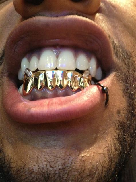 jewelry stores that make grillz chicago custom gold teeth grillz by chigrillz iced