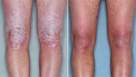 psoriasis and ultraviolet light results of psoriasis phototherapy with narrowband uvb