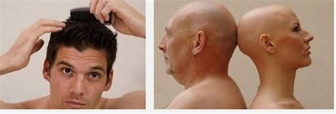 cepat memanjangkan rambut pria botak secara alami