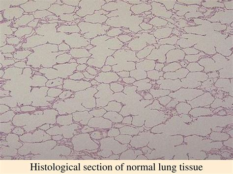 histological section ppt emphysema and spirometry paul r earl facultad de