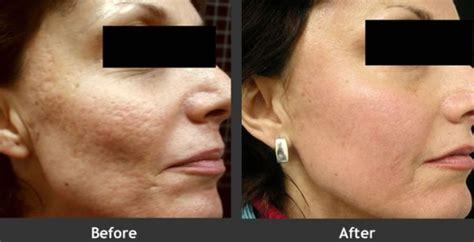 radiofrequenza viso quante sedute acne laser terapia