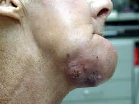 Lip and mouth cancer