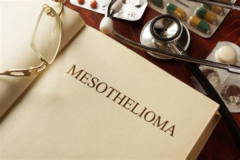 Statute Of Limitations On Mesothelioma Claims by Why Should I Hire A Mesothelioma Firm For My Asbestos
