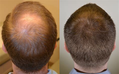 propecia finasteride hair loss medication bernstein propecia before and after photos dr rogers new orleans