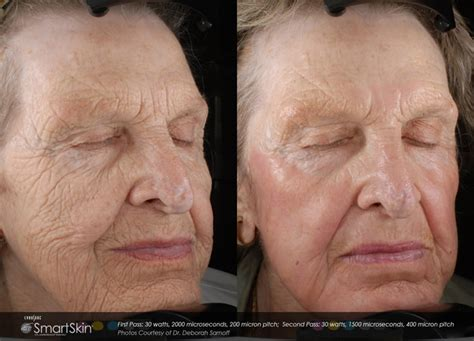 before picosure treatments and 2 weeks after my laser skin resurfacing co2 rejuvenation advanced