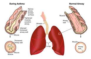 Traditional remedy for asthma bronchitis cough amp lung