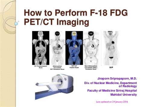 how to a pet how to perform f 18 fdg pet ct imaging