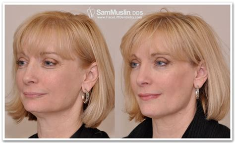 A Facelift For Your Teeth by Dentistry Not Plastic Surgery Deals With Aging Best