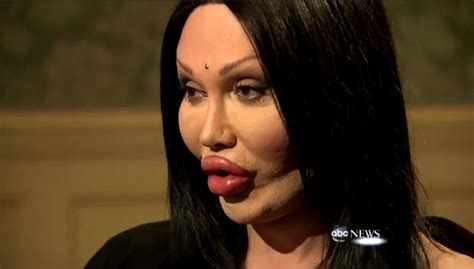 pete burns dead or alive botched plastic surgeries pete burns sued following