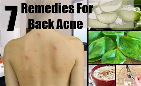 7 home remedies for back acne treatments cure