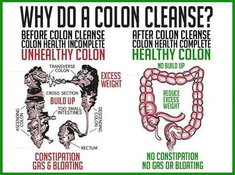 Should You Cleanse And Detox Your Colon by 5 Benefits Of Colon Cleansing Before Starting Hcg Diet