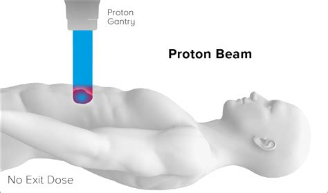 Proton Beam Radiation Therapy by Why Proton Therapy Mevion Systems