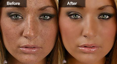 sun spots age spots liver spots treating