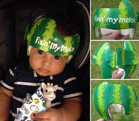 artist decorates babies head shaping helmets  cute