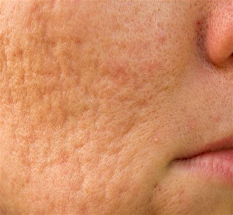 best acne scar best acne scar treatment in nc dlvsc