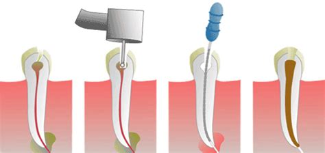 root canal diagram dr key dmd