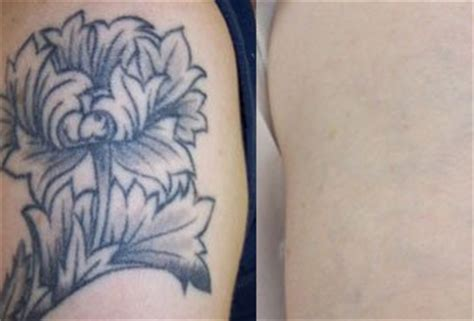 tattoo removal adelaide laser removal adelaide highly skilled call 0431