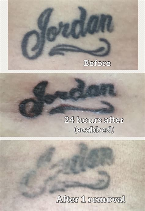 san antonio tattoo removal non laser removal san antonio mad makeup