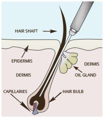 electrolysis vs laser hair removal laser by sia