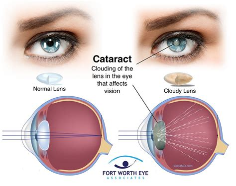 cataract surgery cataract www pixshark images galleries with a bite