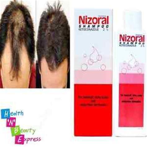 Salep Solinfec hair loss shoo nizoral hair loss shoo 2 ketoconazole