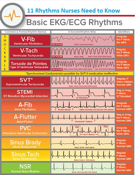 speed reading made simple essential guide the simplest way to read faster comprehend better improving you reading skills and finding a key idea books basic ekg rhythms nclex sheet estudy