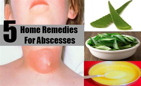 abscesses home remedies treatments cure diy